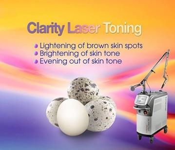 Clarity Toning laser