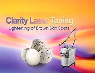 Clarity Laser Toning