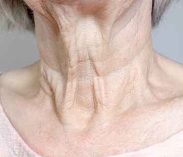 AEON NECK TREATMENTS