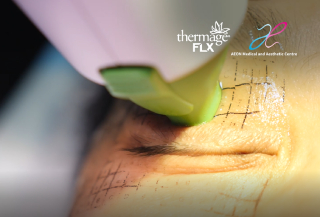 Thermage FLX Eye treatment